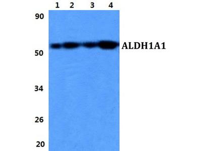 Rabbit Anti-ALDH1A1 Antibody