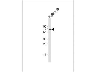 Rabbit Anti-ERVK-7, CT Antibody