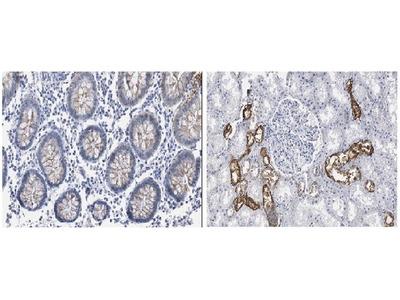 Mouse Anti-p16INK4A Antibody