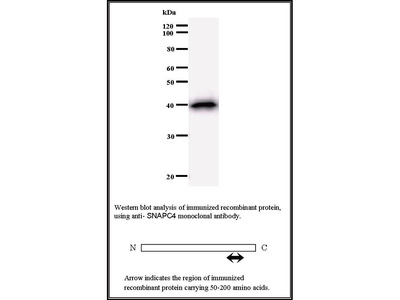 Mouse Anti-SNAP190 Antibody