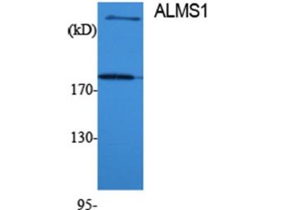 Pab Rb x human ALMS1 antibody