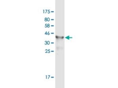Mouse Anti-CFD Antibody