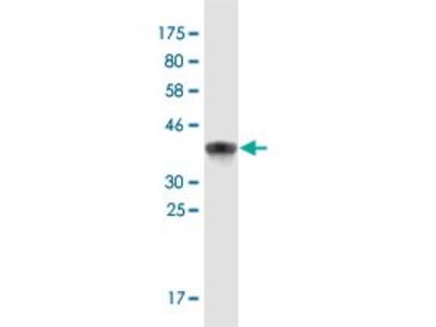 Mouse Anti-NFAT5 Antibody