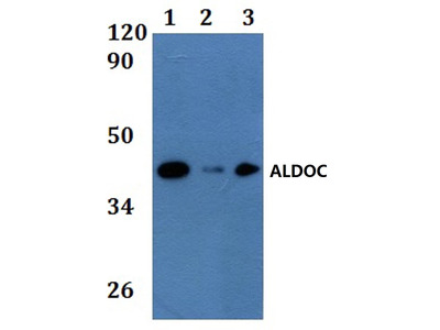 Rabbit Anti-ALDOC Antibody