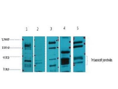 Rabbit Anti-Glucocorticoid Receptor Antibody