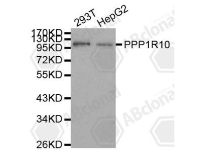 Rabbit Anti-PPP1R10 Antibody
