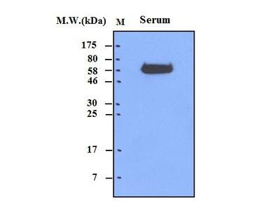 alpha 1 antichymotrypsin (71A1) Monoclonal Antibody