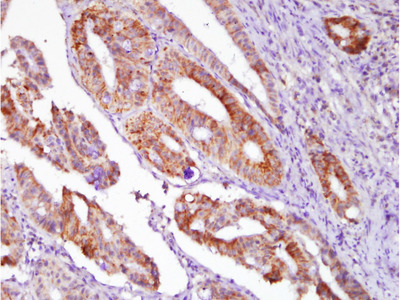 Thyroglobulin (7C2) Monoclonal Antibody