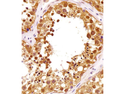 PIN1 (5F5) Monoclonal Antibody