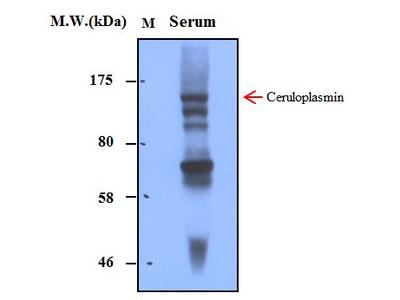 Ceruloplasmin (3B11) Monoclonal Antibody