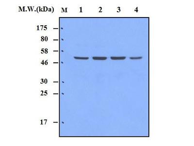 MAPKAP kinase 5 (13H5) Monoclonal Antibody