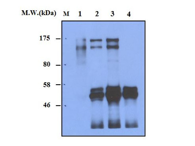 Complement Factor H (63G5) Monoclonal Antibody