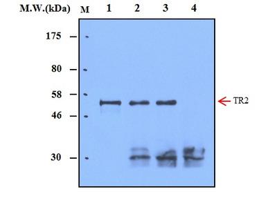 Thioredoxin Reductase 2 (25B3) Monoclonal Antibody
