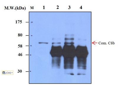 Complement factor C8 beta (14A10) Monoclonal Antibody