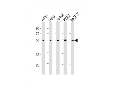 CHK1 (2G1D5) Monoclonal Antibody
