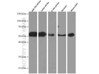 P2RX5 antibody