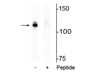 Anti-Phospho-Androgen Receptor (AR) (Ser94) Antibody