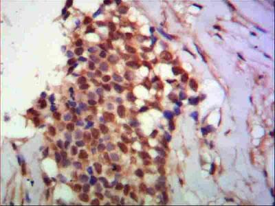 Anti-PPX PPP4C Monoclonal Antibody