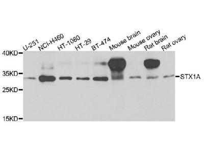 Anti-Aurora kinase C AURKC Antibody