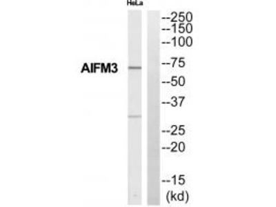 Anti-Collagen XI alpha Antibody