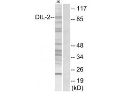 Anti-DIL-2 Antibody