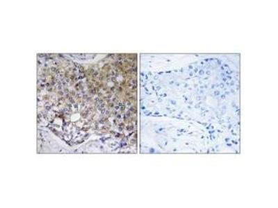 Anti-Cysteine protease ATG4A ATG4A Antibody