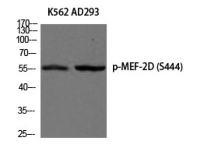 Anti-Phospho-MEF-2D (Ser444) Polyclonal Antibody