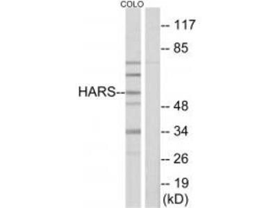 Anti-HARS/Hisrs Antibody