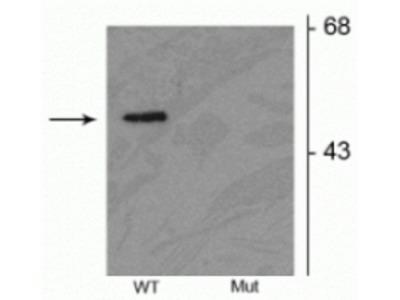 Anti-Phospho-Parkin (Ser378) Antibody