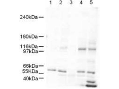 Anti-SmarcAL1 Antibody