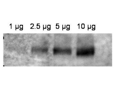 Anti-ABCB1/Mdr1 Antibody
