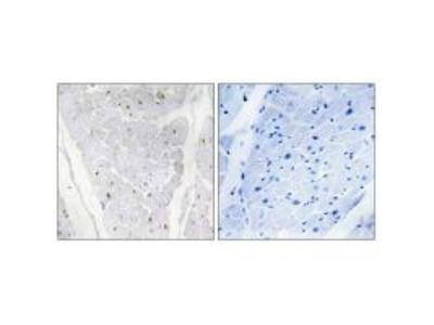 Anti-ALPK2 Antibody