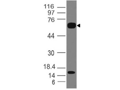 Anti-IL-36R Antibody (Monoclonal, ABM47A2)