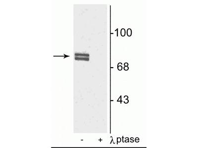 Anti-Phospho-5-Lipoxygenase (Ser523) Antibody