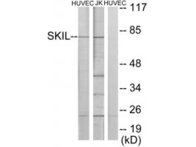 Anti-SKIL/Snon Antibody