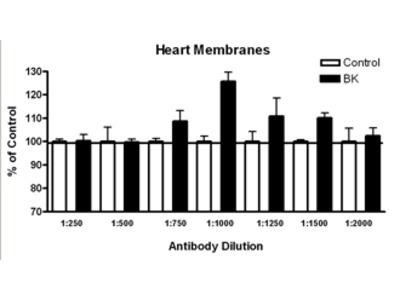 Anti-Bradykinin Receptor B<sub>2</sub> Antibody