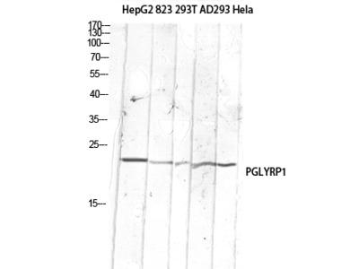 Anti-PGLYRP1 Antibody