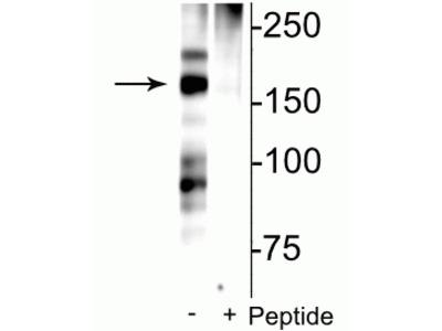 Anti-Phospho-NMDA Receptor NR2B Subunit (Ser1166) Antibody