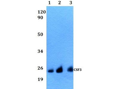 Anti-CSF3 Antibody