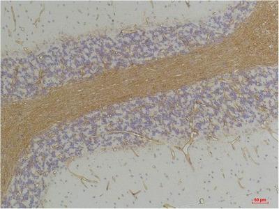 Anti-GABA A Receptor alpha GABRA2 Antibody