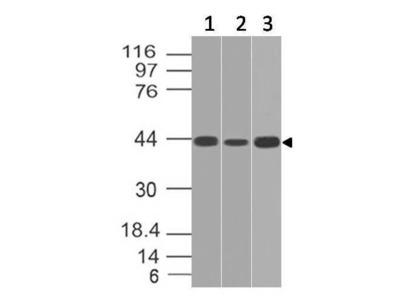 Anti-IL-17RE Antibody (Monoclonal, ABM2G70)
