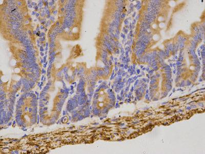 Anti-CBR1 Antibody