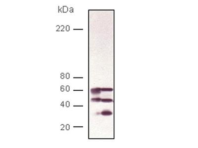 Anti-Calcineurin A PPP3CB Antibody