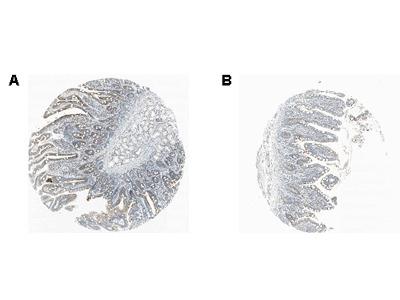 Anti-RANKL Antibody (Monoclonal, Ranky-1)