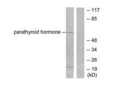 Anti-Parathyroid Hormone PTH Antibody