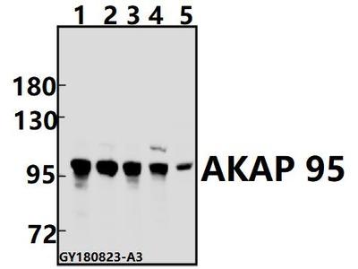 Anti-AKAP 95 (E363) AKAP8 Antibody