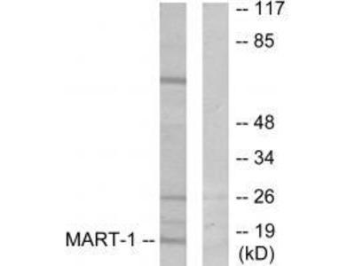 Anti-MART-1 Antibody