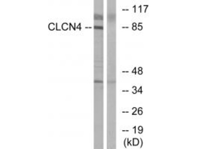 Anti-CLCN4/Clc 4 Antibody