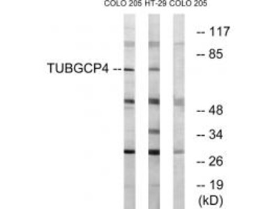 Anti-TUBGCP4/Gcp4 Antibody