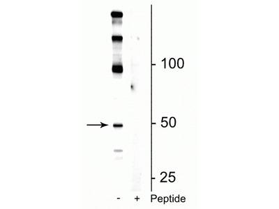 Anti-Phospho-eEF1A2 (Ser358) Antibody